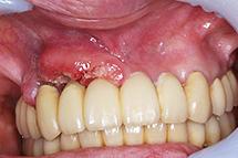 口内炎 治ら ない 画像